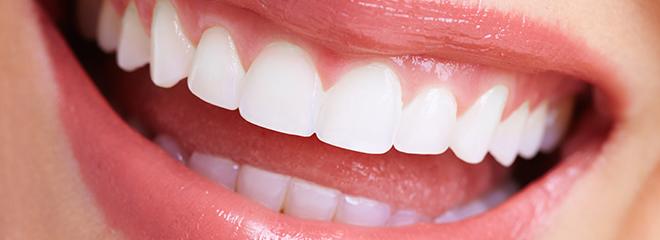 リテーナーとは?治療後の歯の後戻りを防ぐ保定や期間について