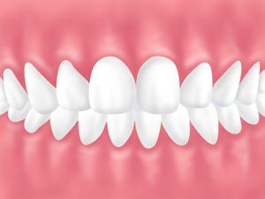 「歯の後戻り」が起こる理由
