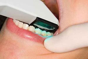 歯型採取は1回