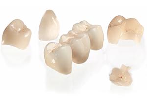 1日で白い歯を――セレックシステム