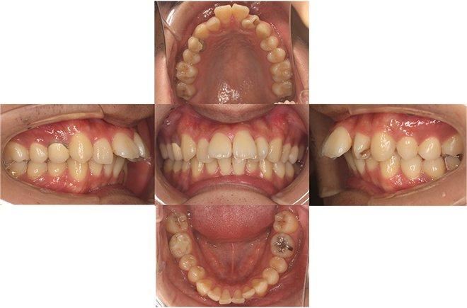 治療期間:11ヶ月(マウスピース38枚) Before