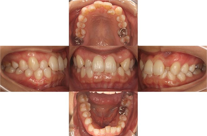 治療期間:10+7ヶ月(計1年5ヶ月) Before