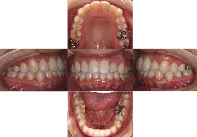 治療期間:10+7ヶ月(計1年5ヶ月)After