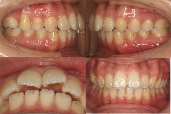 治療期間:5ヶ月(インビザライン・ライト アライナー14枚) Before