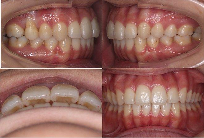 治療期間:5ヶ月(インビザライン・ライト アライナー14枚)After