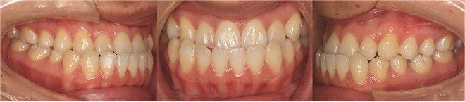 治療期間:治療期間10+5ヶ月(計1年3ヶ月)(マウスピース29+13枚(計42枚)) Before
