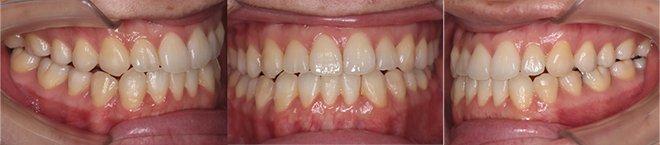 治療期間:治療期間10+5ヶ月(計1年3ヶ月)(マウスピース29+13枚(計42枚))After