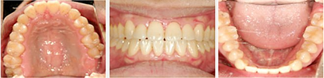 治療期間:約1年7ヶ月 After