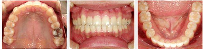 治療期間:約1年6ヶ月 After