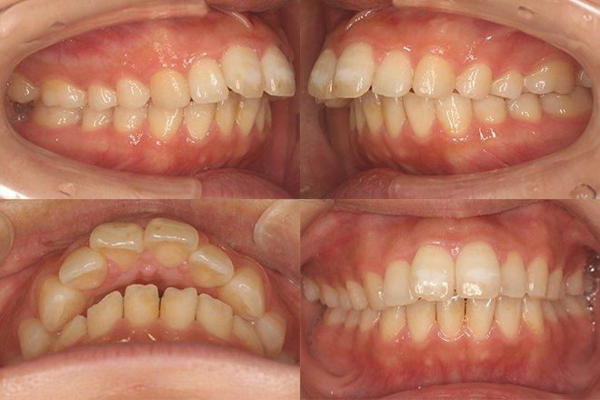 上顎のみ2本抜歯 治療期間11カ月 追加アライナー無し Before
