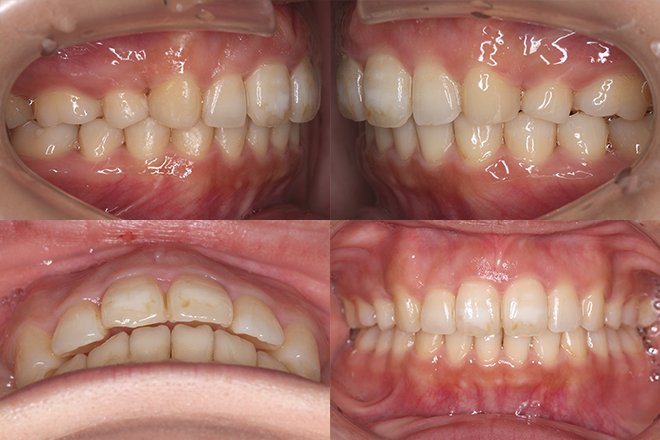 上顎のみ2本抜歯 治療期間11カ月 追加アライナー無し After