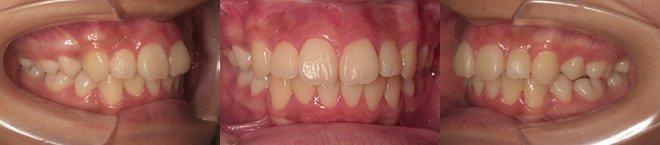 上下第一小臼歯4本抜歯 治療期間11カ月 追加アライナー無し 治療後