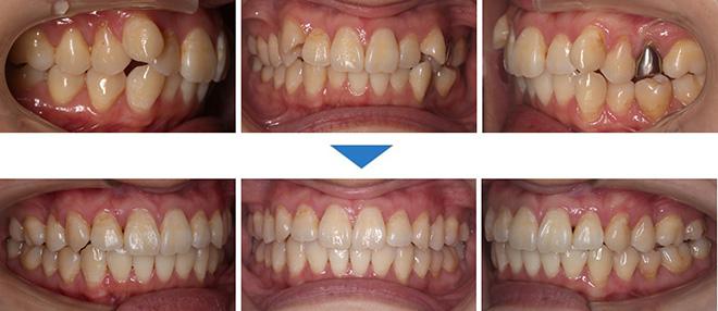 治療期間:7ヶ月(マウスピース28枚)抜歯あり