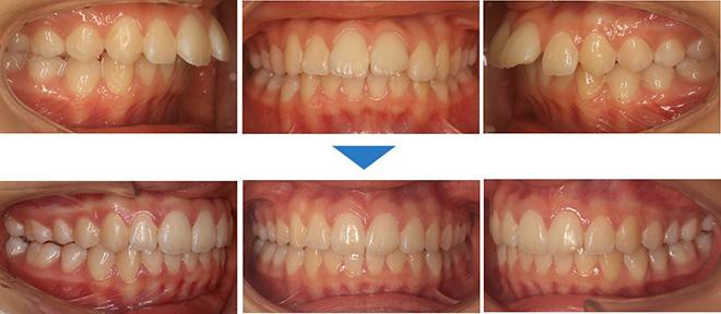 治療期間:1年6ヶ月(マウスピース65枚)抜歯なし