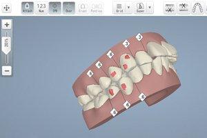歯の動きの確認が可能