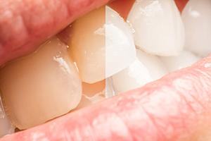 歯を白くする~ホワイトニング~
